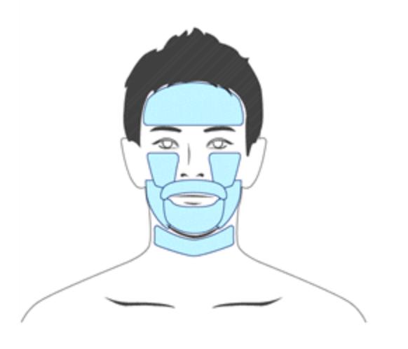 アロンソ 顔脱毛できる範囲