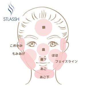 顔脱毛範囲ストラッシュ