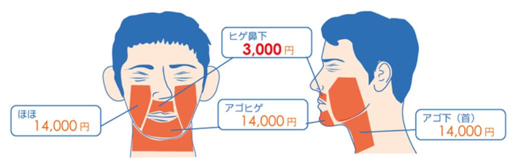 KM新宿クリニック メンズ 顔脱毛できる範囲