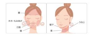 もとび美容外科 顔脱毛範囲