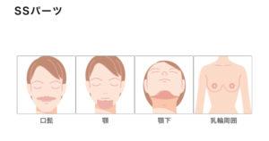 もとび美容外科 SSパーツの脱毛範囲