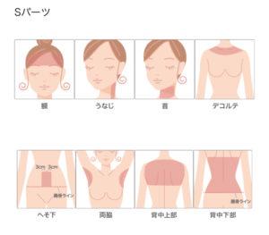 もとび美容外科 Sパーツの脱毛範囲