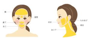 名古屋中央クリニック 顔の脱毛範囲
