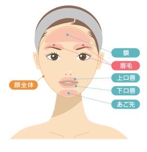 渋谷美容外科 顔脱毛 範囲
